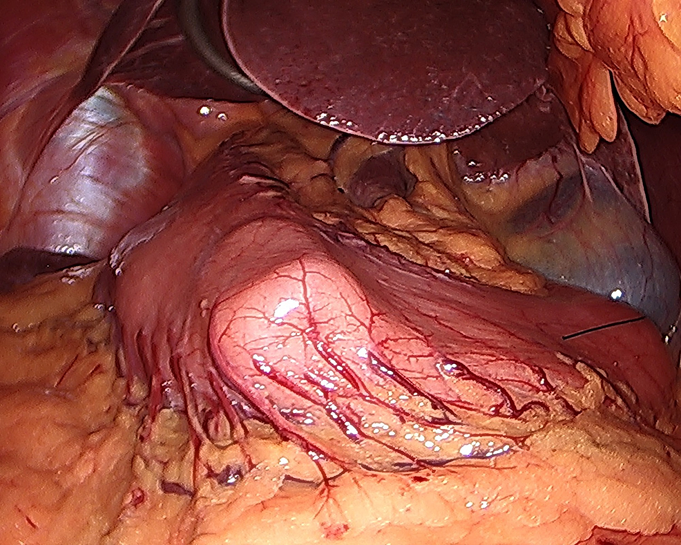 42-French-bougie-oriented-along-the-lesser-curvature-of-the-stomach-to-identify-the-antrum.-Note-the-surrounding-mirrored-anatomy-including-the-liver-and-gallbladder.