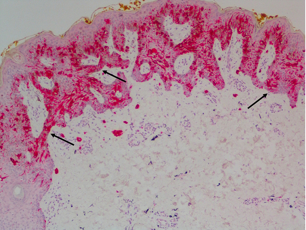 Melan-A-immunohistochemical-stain-confirmed-intraepidermal-melanocytic-proliferation