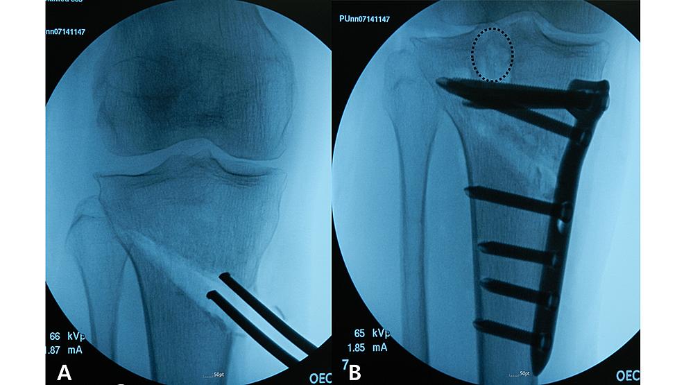 Intraoperative-fluoroscopic-images.