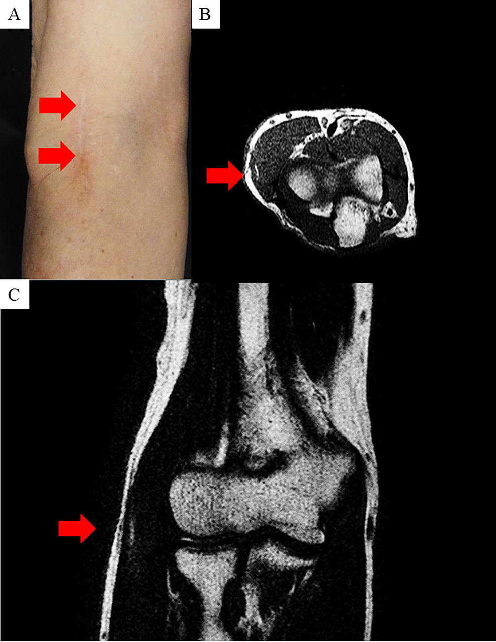 Appearance-and-magnetic-resonance-imaging-(MRI)-features-of-the-right-elbow.