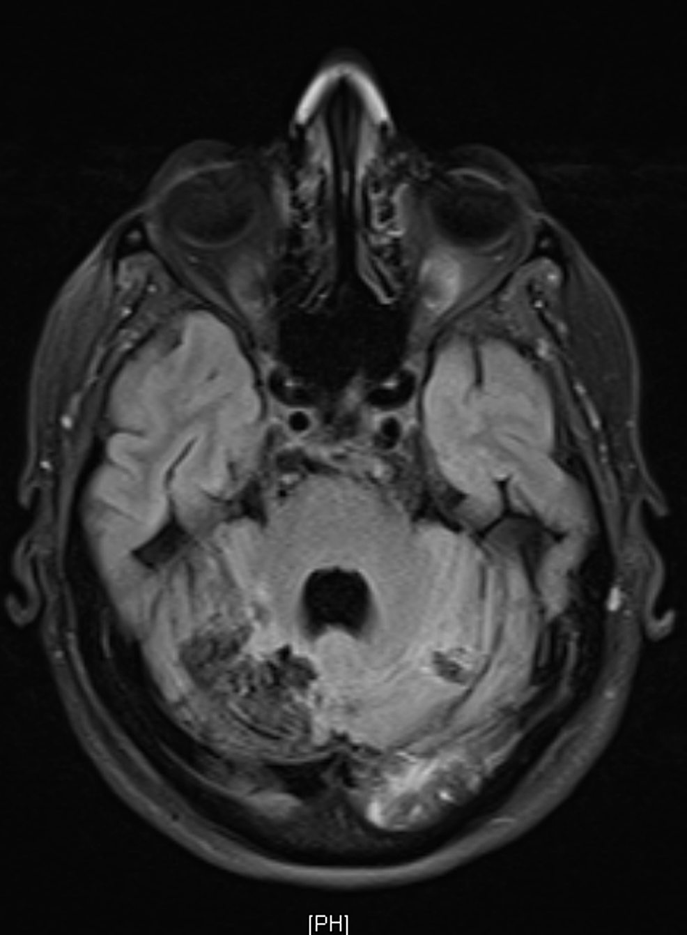 Follow-up-magnetic-resonance-imaging-(MRI)-three-months-after-discharge-showing-loss-of-volume-and-encephalomalacia-in-the-right-and-left-occipital-regions-representing-sequelae-of-previous-infarction