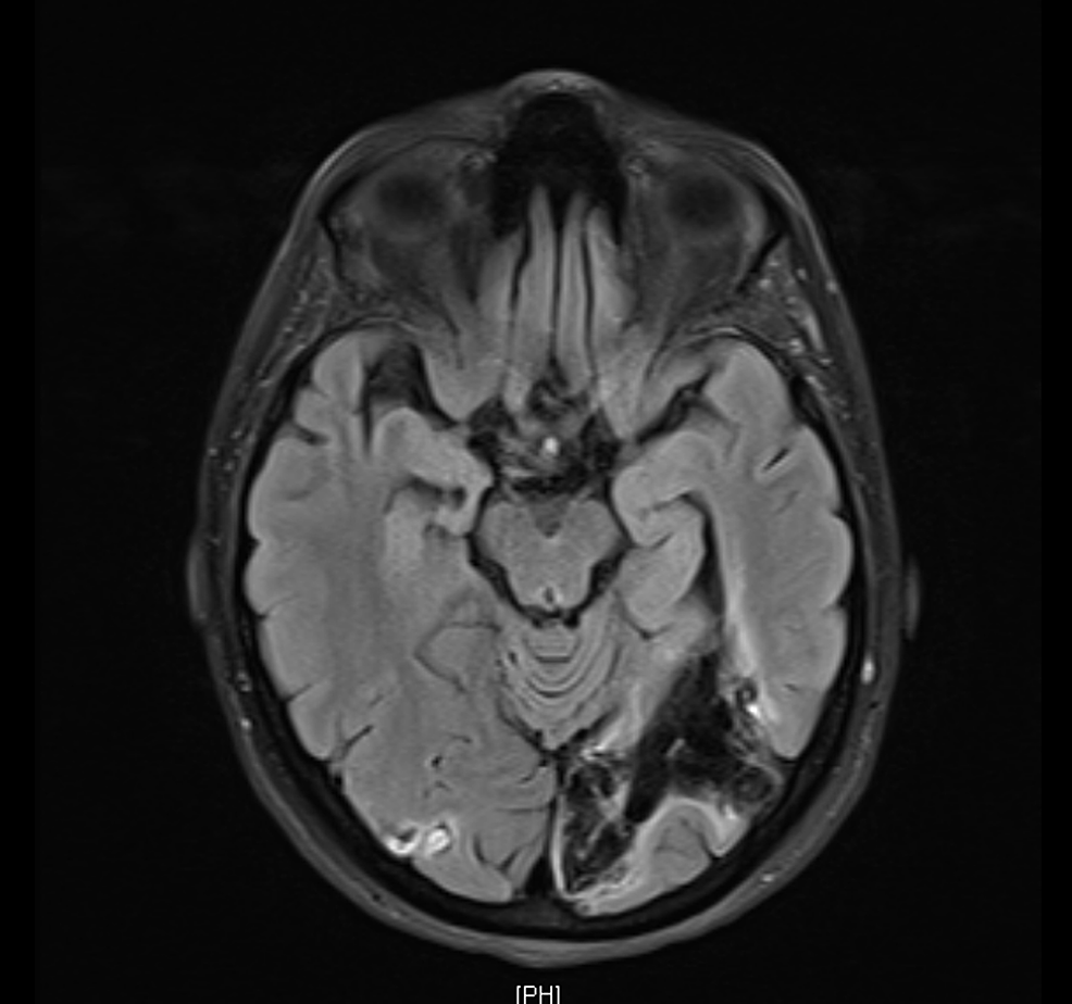 Follow-up-magnetic-resonance-imaging-(MRI)-three-months-after-discharge,-showing-loss-of-volume-and-encephalomalacia-in-the-right-and-left-occipital-region-representing-sequelae-of-previous-infarction