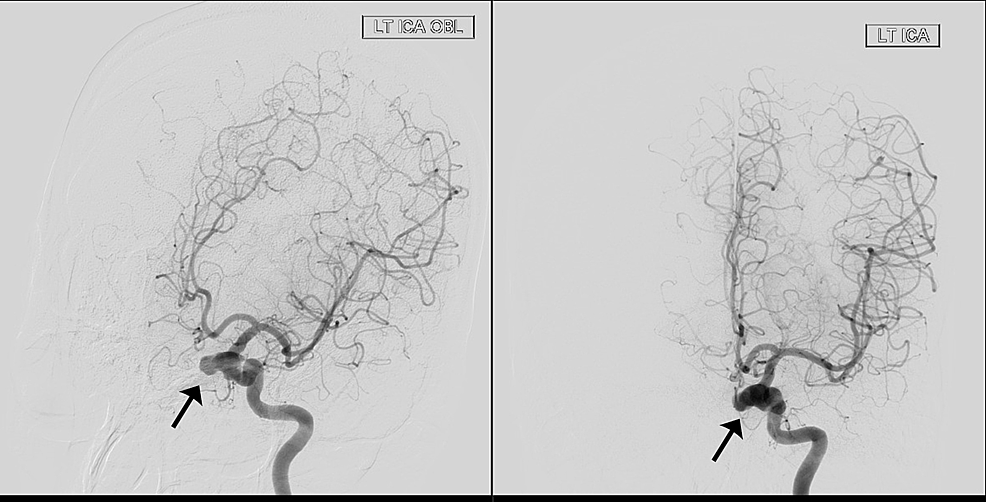 Preoperative-digital-subtraction-angiogram-(DSA)-of-the-left-internal-carotid-artery-(ICA)-(oblique-and-lateral-views)-showing-aneurysm-of-the-cavernous-segment-(black-arrow).
