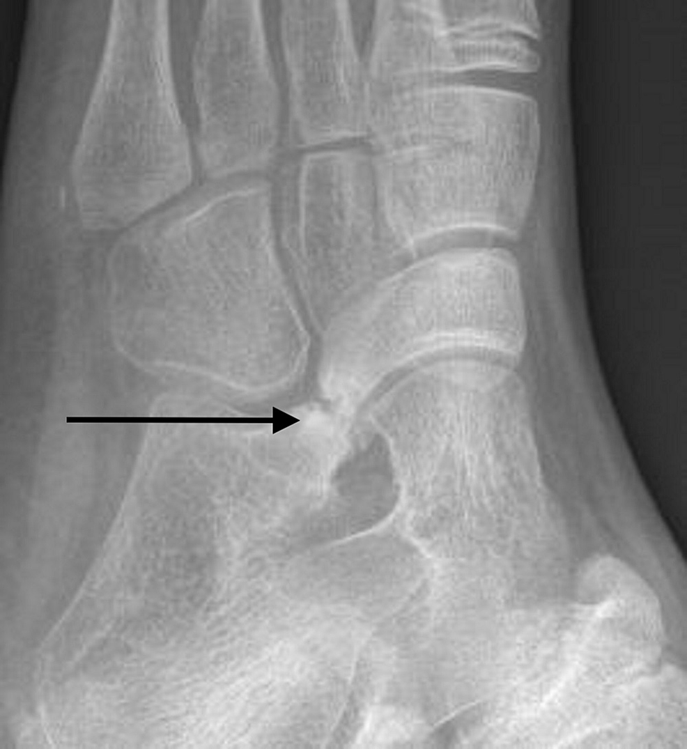 Oblique-view-of-left-foot-demonstrating-calcaneonavicular-coalition.-