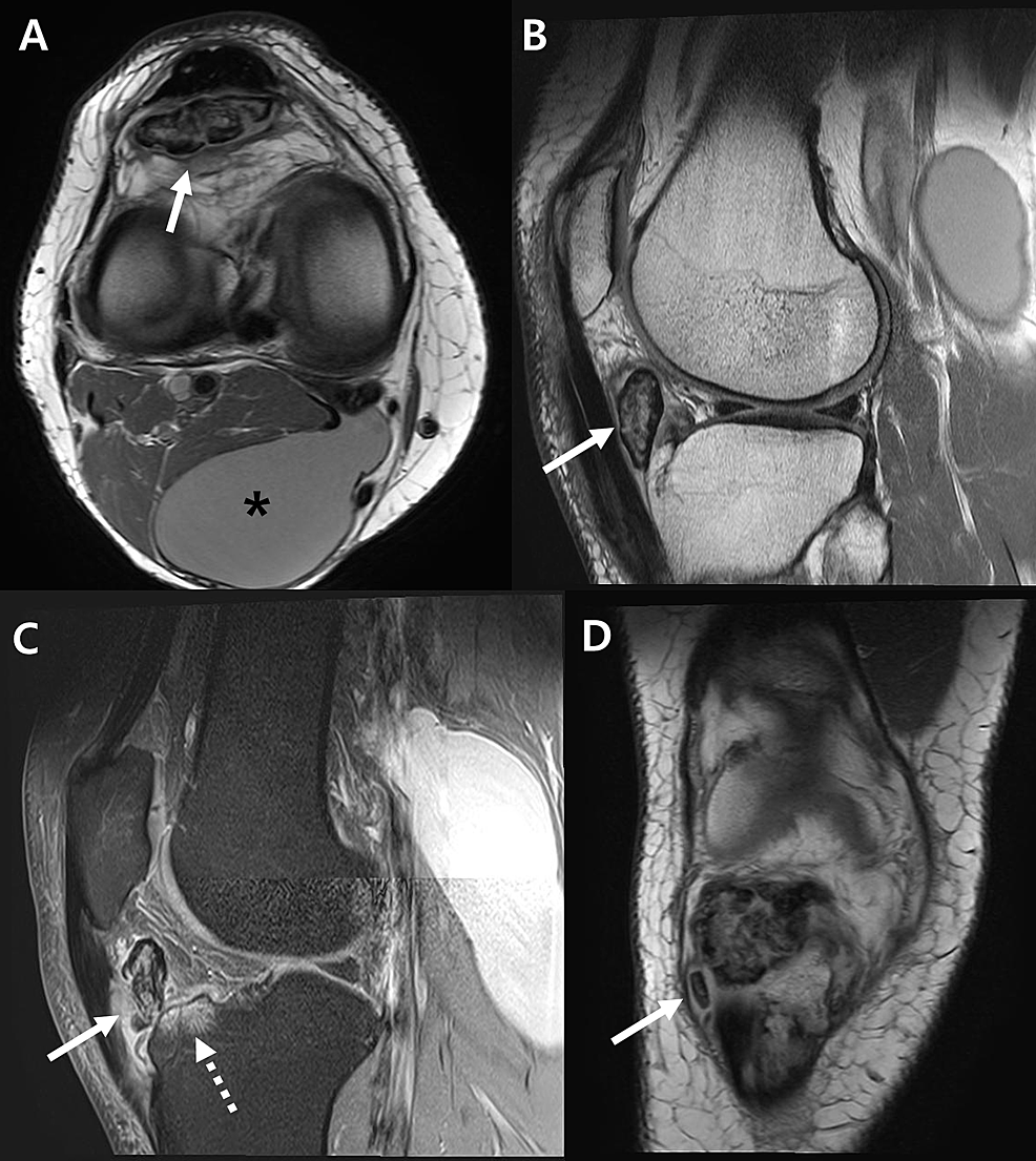 Right-knee-magnetic-resonance-images.