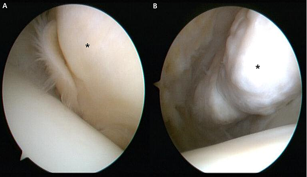 Right-knee-arthroscopy-findings.