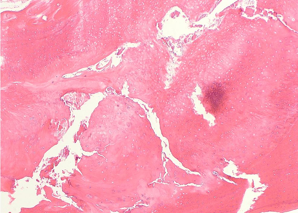 Histopathology-finding.