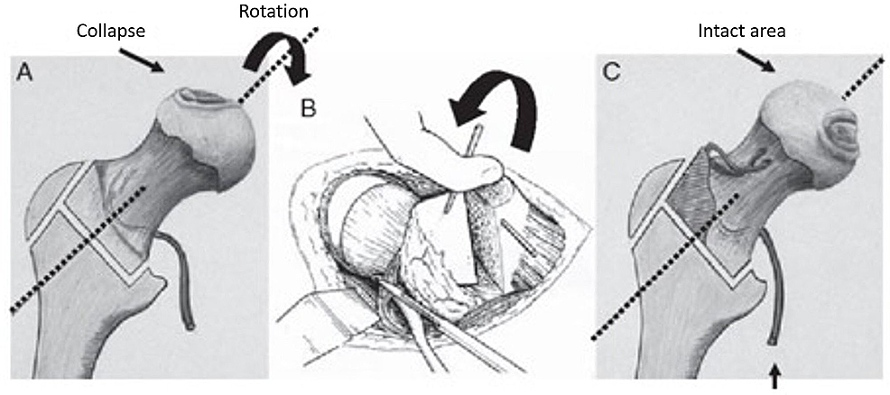 Illustration-showing-rotation-osteotomy