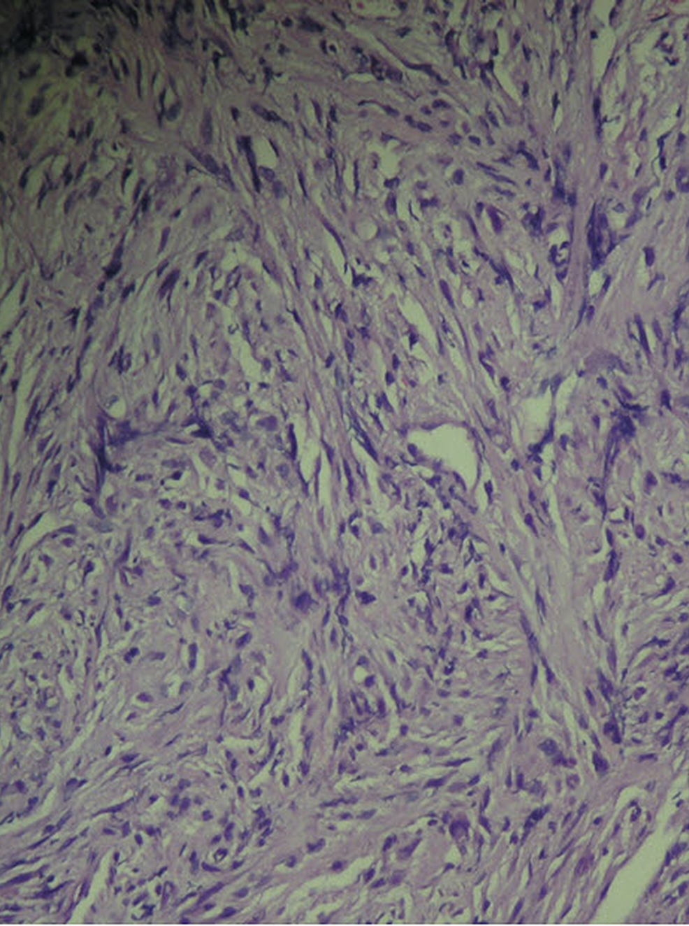 Histopathology-stained-with-H&E:-Spindle-cells-with-short-fascicles-and-pleomorphic-nuclei.