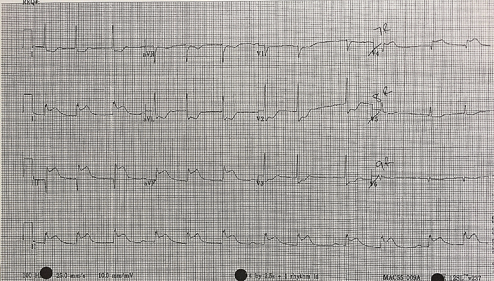 15-lead-electrocardiogram-(ECG)-showing-evidence-of-an-inferior-myocardial-infarction-(MI)-with-right-ventricular-involvement.-ST-elevation-is-seen-in-V4R-in-addition-to-the-inferior-leads.-Reciprocal-changes-are-noted-in-leads-I,-aVL,-V2-and-V3.
