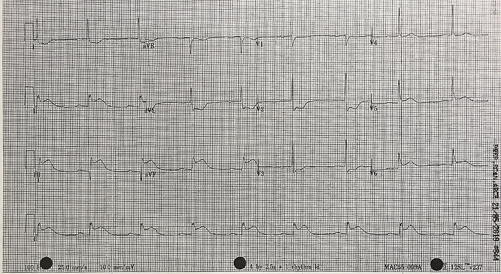 12-lead-electrocardiogram-(ECG)-shortly-post-fibrinolytic-therapy-with-persistence-of-ST-changes.