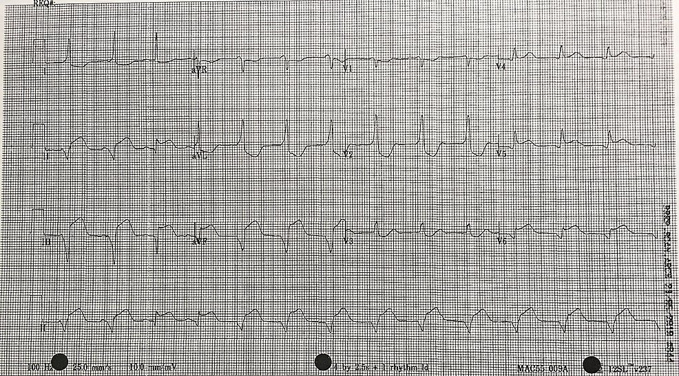 12-lead-electrocardiogram-(ECG)-illustrating-accelerated-idioventricular-rhythm-(AIVR)-post-fibrinolytic-therapy.