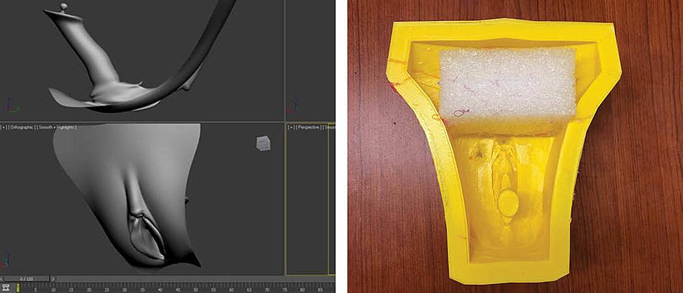 Perineum-(.stl)-model-and-custom-3D-printed-mold
