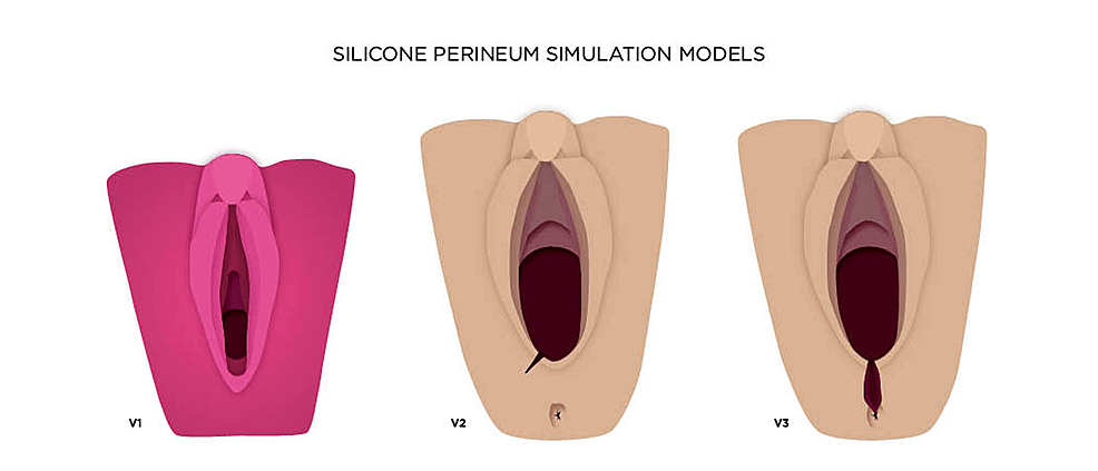 Proposed-progression-of-silicone-perineum-models,-which-includes-first--and-second-degree-lacerations-(v2)-and-third--and-fourth-degree-lacerations-(v3)