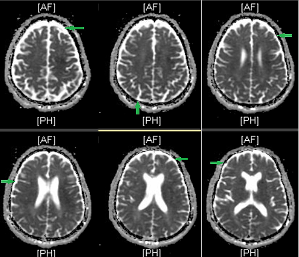 T2-weighted-brain-MRI-of-a-70-year-old-male-with-neurosyphilis-showing-diffuse-cortical-atrophy.-Green-arrows-indicate-areas-of-cortical-atrophy.