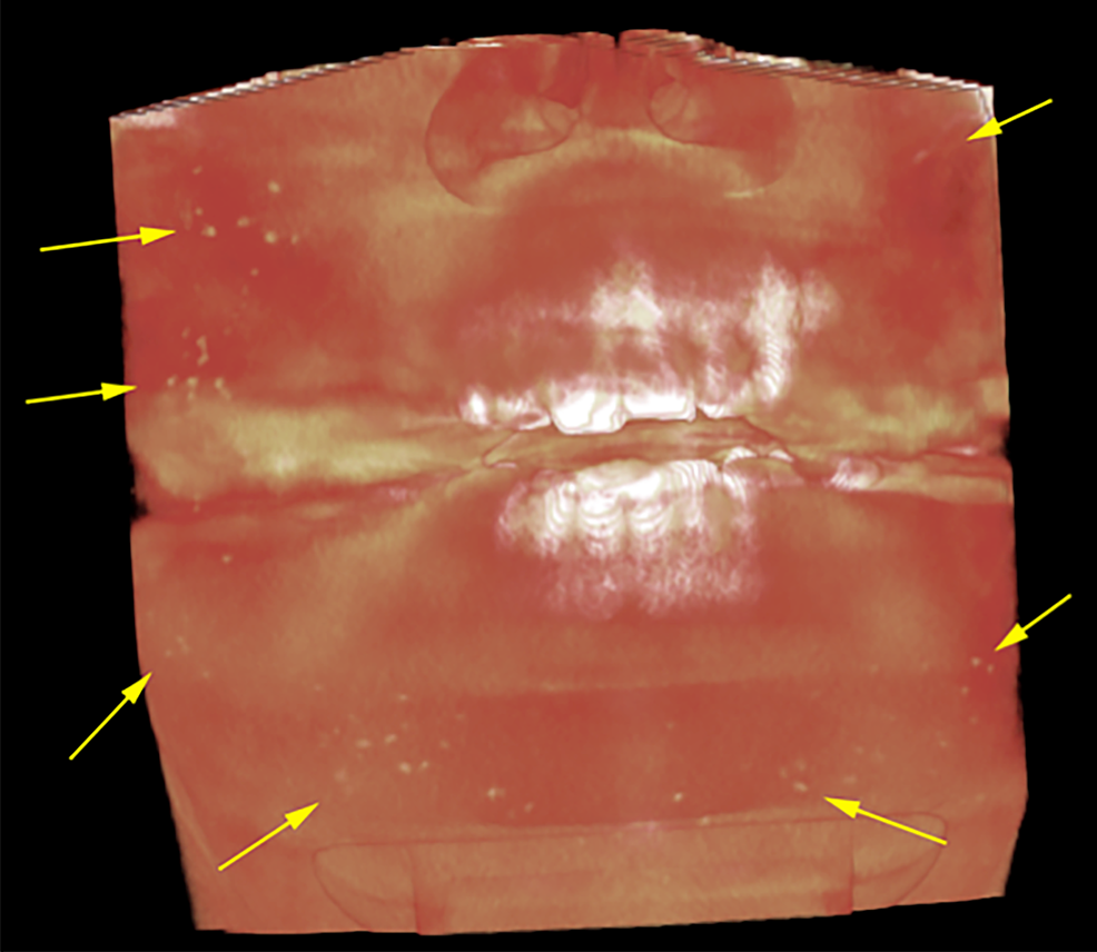 Volumetric-rendering-of-CBCT-scan-of-OC.-Soft-tissue-rendering-shows-multiple-small-nodules-of-high-density-spread-in-the-cheeks,-lips-and-chin-regions-indicated-by-yellow-arrows.