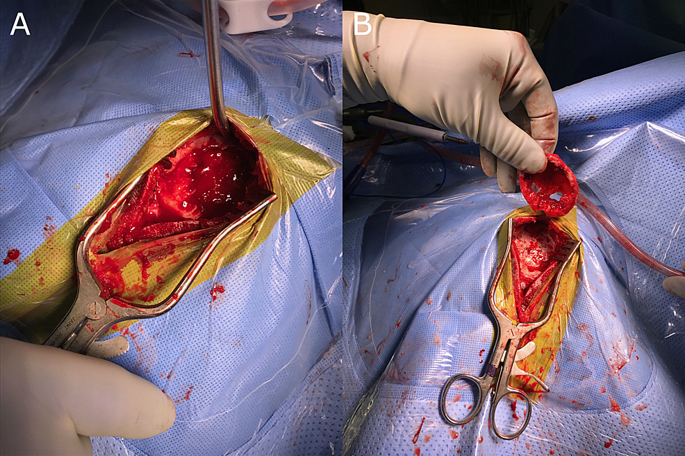Intraoperative-images.