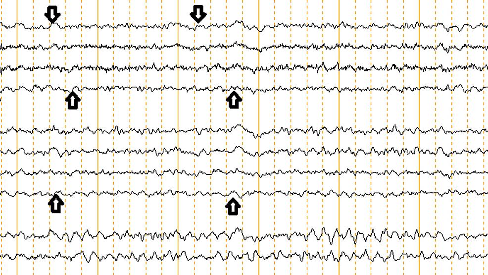EEG-showing-diffuse-slowing-indicating-generalized-encephalopathy.