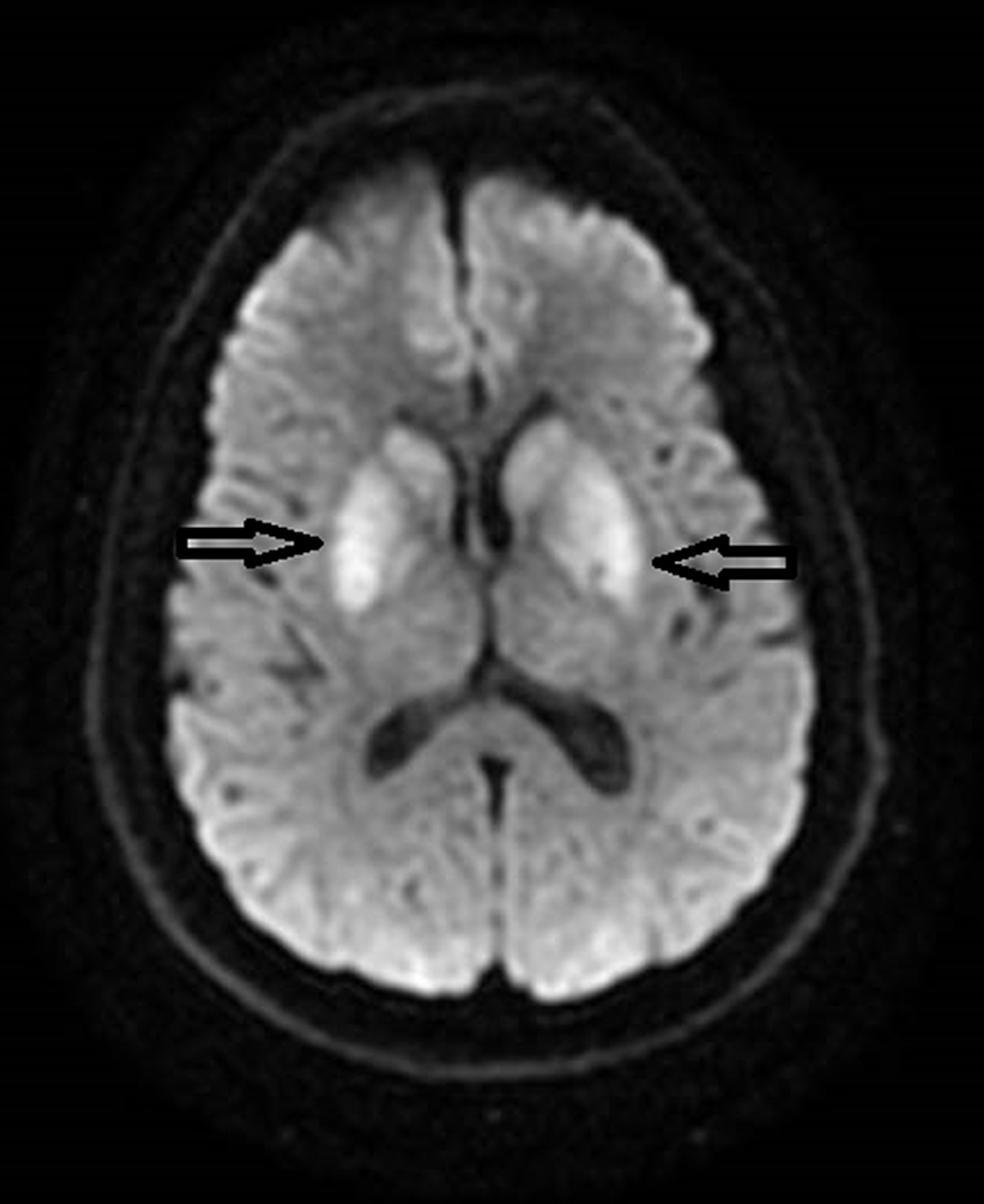 MRI-brain-axial-DWI-showing-restricted-diffusion-in-bilateral-basal-ganglia.