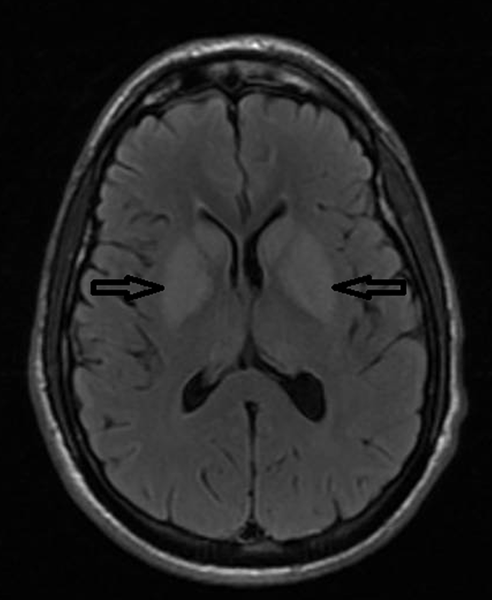 MRI-brain-axial-T2-FLAIR-sequence-showing-hyperintensities-in-bilateral-basal-ganglia.