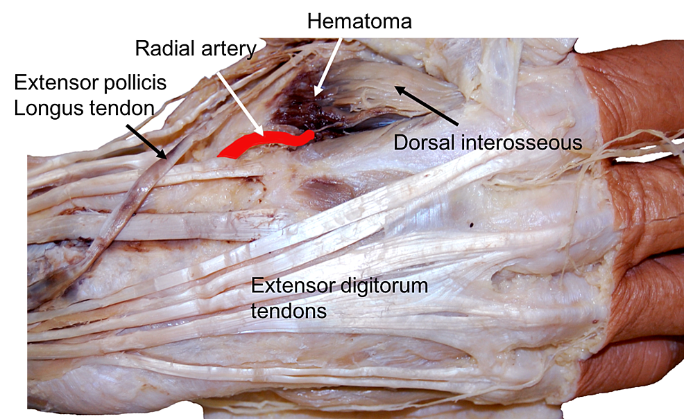 Cureus Radial Artery Injury With Attempted Intravenous