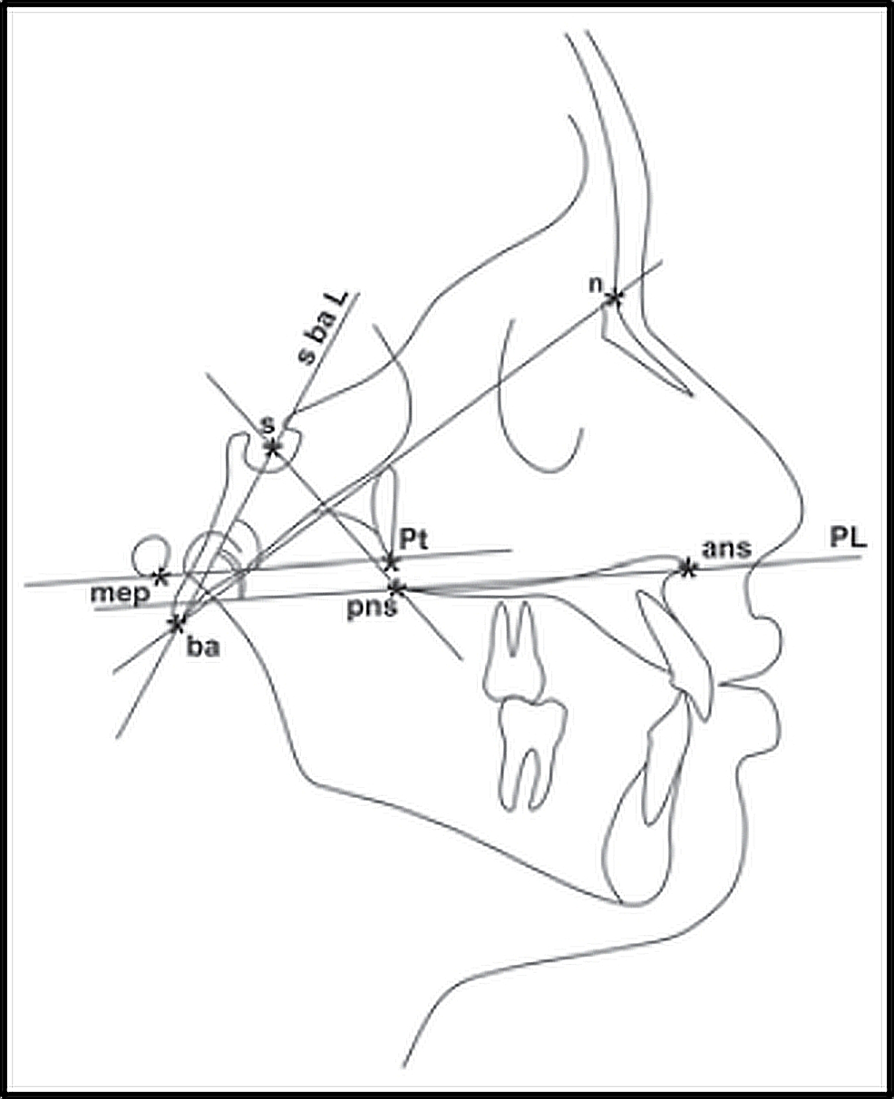 Cephalometric-landmarks,-linear-and-angular-measurements