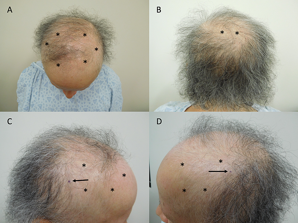 Alopecia-in-a-breast-cancer-patient-after-taxane-chemotherapy-and-adjuvant-hormonal-therapy