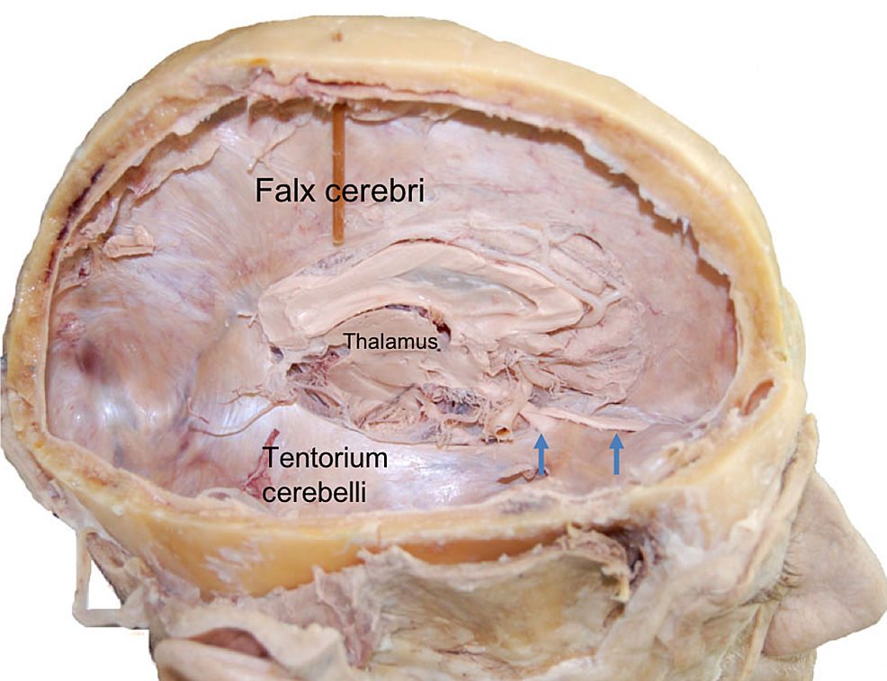 Right-lateral-view-of-the-cranium-after-hemicraniectomy-and-removal-of-right-cerebral-hemisphere-in-a-cadaver.