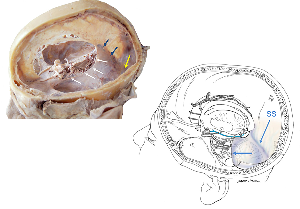 Left:-the-tentorial-incisura-(white-arrows),-straight-sinus-(blue-arrows)-and-transverse-sinus-(yellow-arrow);-Right,-schematic-drawing-of-left-hemicranium-noting-the-numerous-neurovascular-structures-just-medial-to-the-tentorial-incisura-e.g.,-basal-vein-of-Rosenthal-(blue).-