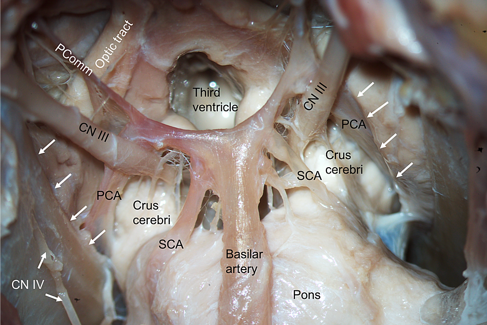 Inferior-view-of-the-tentorial-incisura-(white-arrows)-following-a-skull-base-approach.