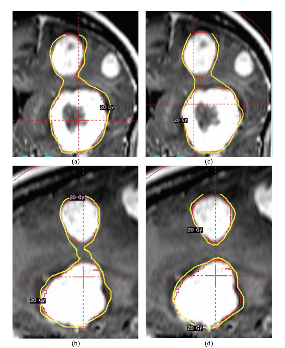 The-two-brain-metastasis-(BMs)-were-adjacent-in-the-superior-inferior-(SI)-direction-and-planned-in-the-sequential-mode
