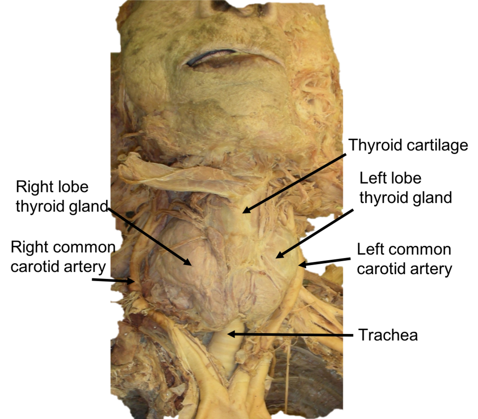 Cureus Bilateral Displacement Of The Common Carotid Arteries By A