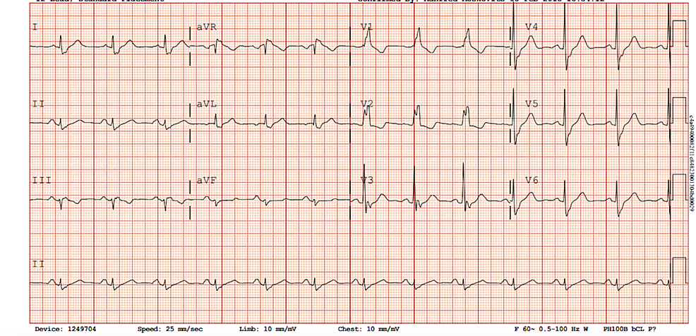 Electrocardiogram-(ECG)-on-admission-showing-a-sinus-rhythm-with-a-right-bundle-branch-block-and-no-ST-segment-or-T-wave-changes-indicative-of-ischemia.