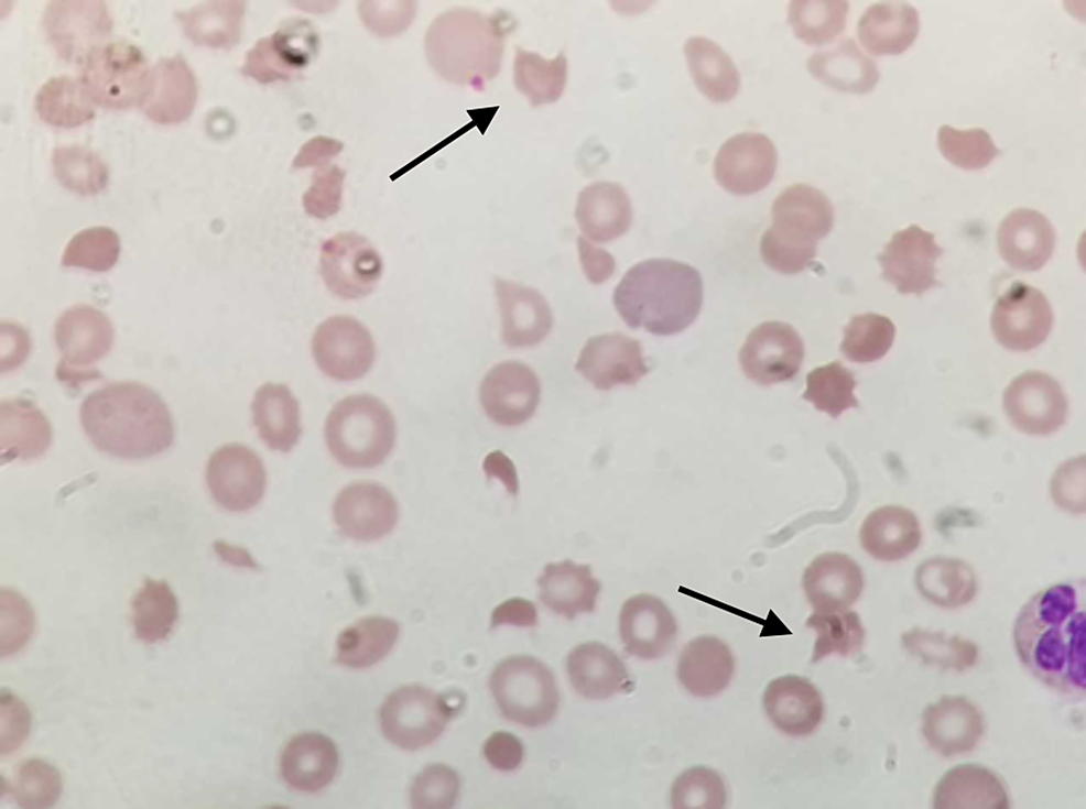 Schistocytes-under-magnification