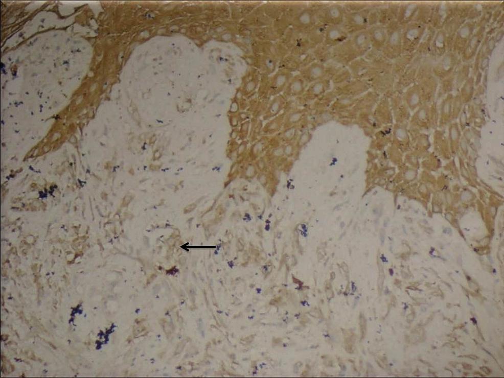 Sarcomatoid-areas-showing-immunoreactivity-to-pancytokeratin,-extending-from-the-overlying-stratified-squamous-epithelium-(black-arrow)---IHC-X-200.