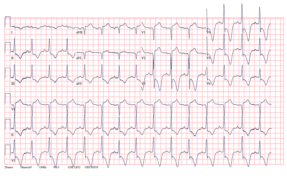 Persistence-of-deep-T-wave-inversions-in-V3-to-V6-of-a-patient-with-AHCM.