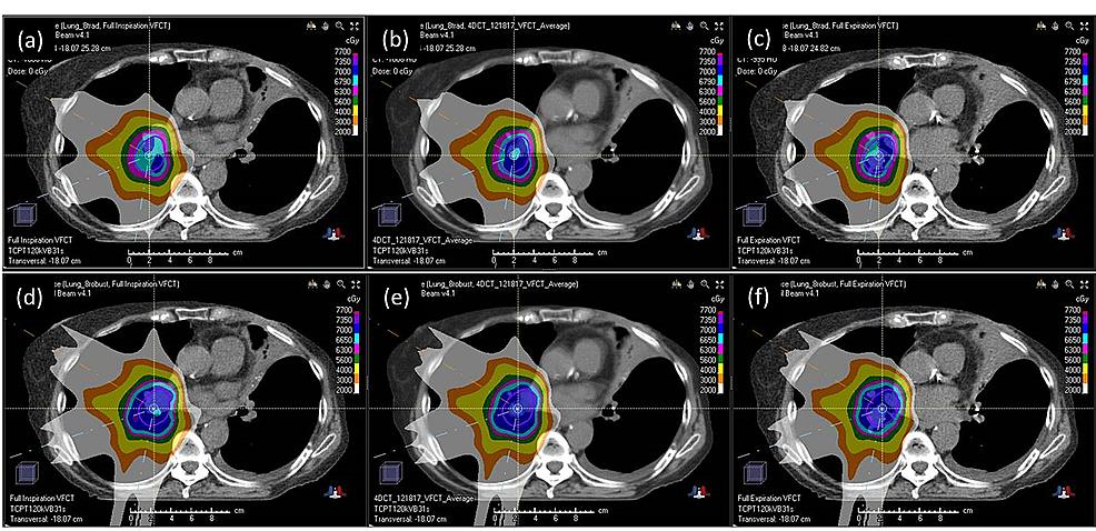 Verification-computed-tomography:-dose-distribution