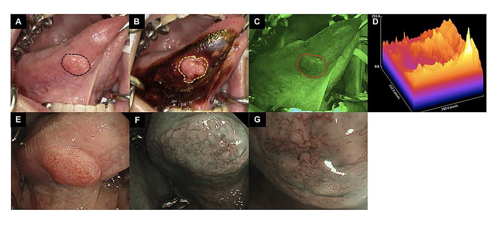 Comparison-of-tongue-SCC-observed-with-each-examination-method-(macroscopy,-IOM,-IllumiScan,-NBI)