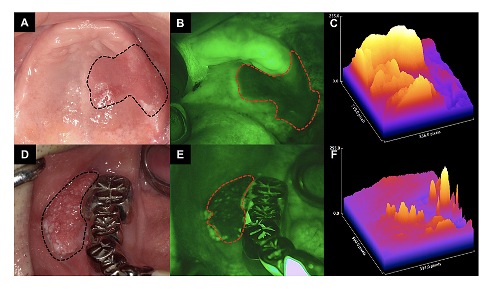 Observation-of-palatal-and-gingival-SCC-observed-with-each-examination-method-(macroscopy,-IllumiScan)