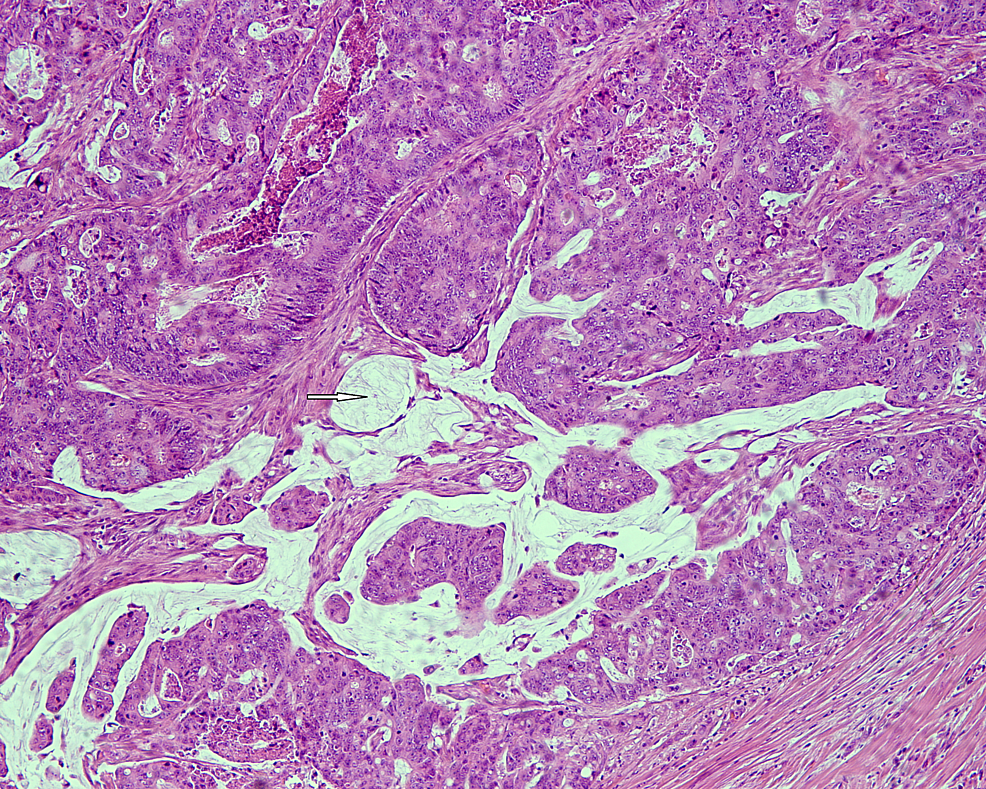 Poorly-differentiated-colonic-adenocarcinoma-displaying-extracellular-mucin-production-(white-arrow)-(HE-x-100).