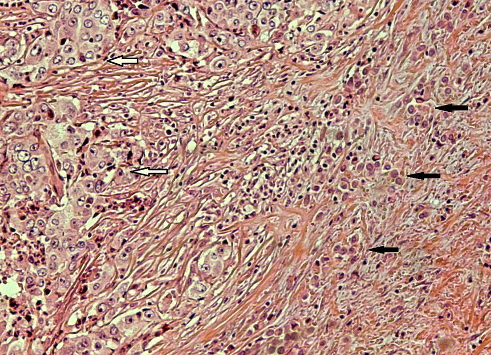 Nests-of-poorly-differentiated-colonic-carcinoma-(white-arrows)-in-close-proximity-to-smaller-neoplastic-cells-(black-arrows)-with-a-diffuse-architectural-pattern-(HE-x-100).