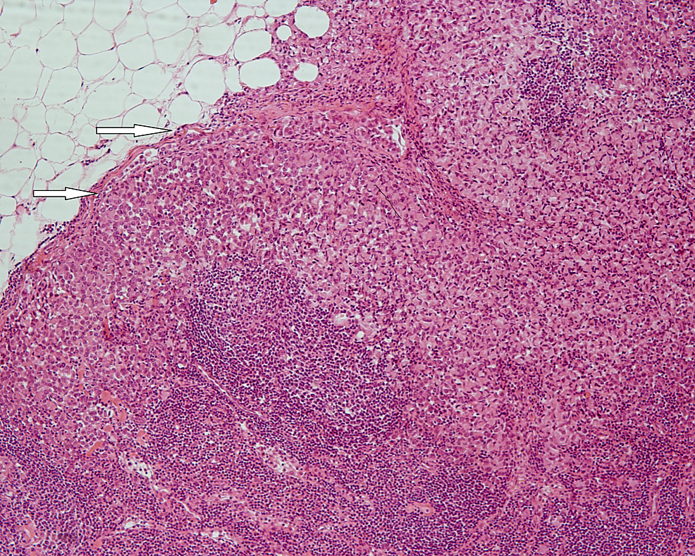 Lymph-node-infiltration-by-diffuse-type-carcinoma-cells-(white-arrows)-(HE-x-100).