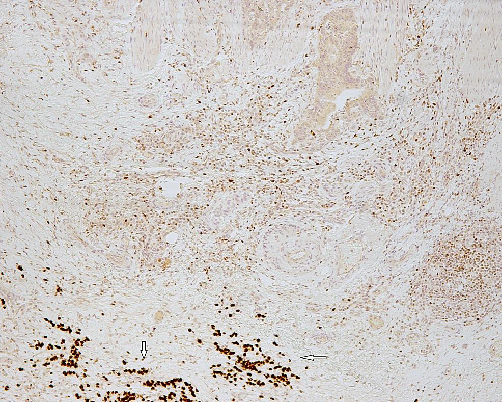 Diffuse-type-carcinoma-cells-were-positive-for-GATA-3-(white-arrows)-while-colonic-adenocarcinoma-cells-were-negative-(GATA-3-x-100).
