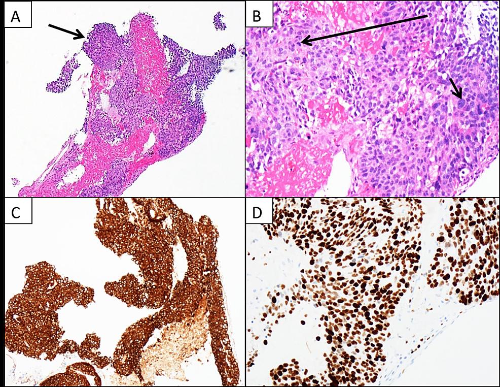 Histopathology-and-immunohistochemistry-for-metastatic-tumor-of-the-heart.