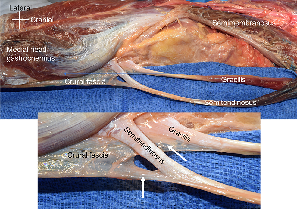 Cadaveric-specimen-reported-herein