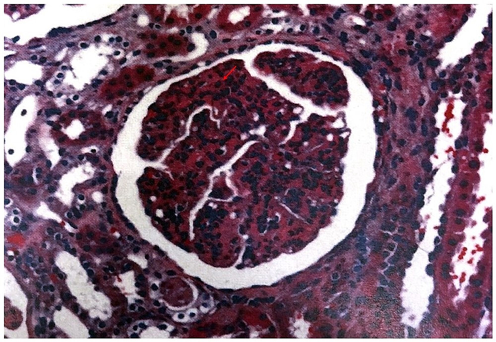 Light-microscopy:-the-arrow-shows-endocapillary-proliferation-with-cellular-infiltrates.