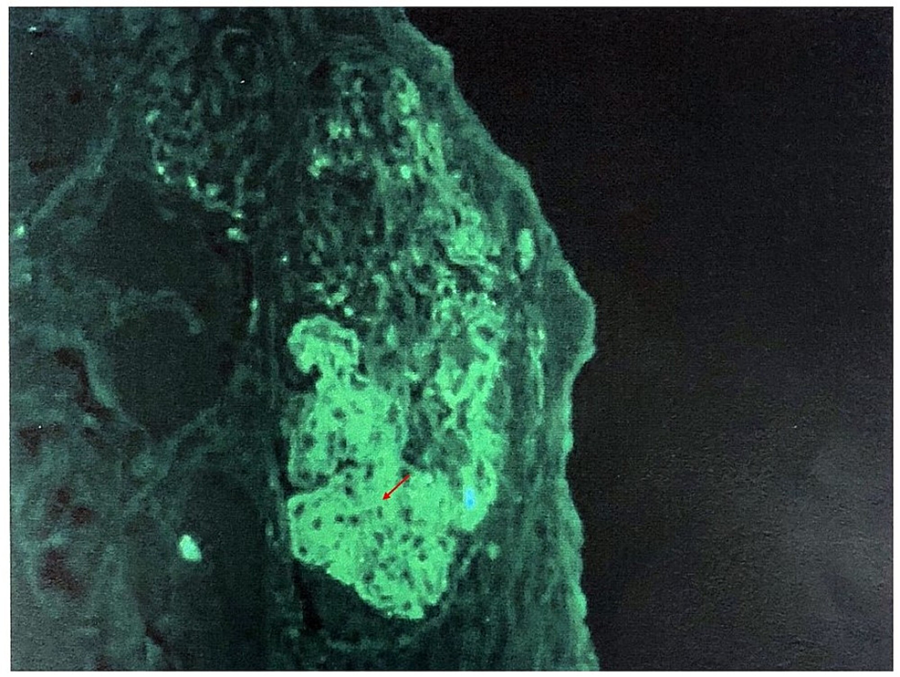 Direct-immunofluorescence:-the-arrow-shows-granular-staining-of-C3-complements.