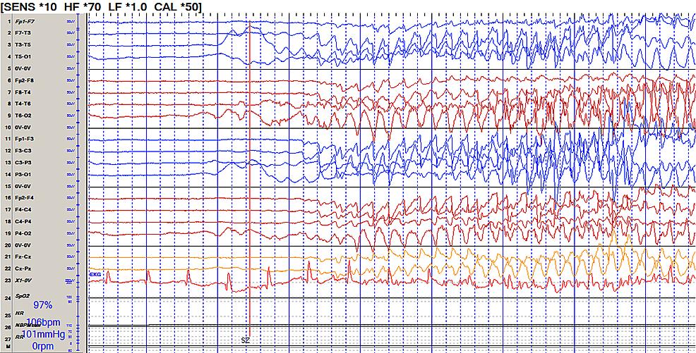 Continuous-electroencephalogram-(EEG)-showing-breakthrough-seizures-in-spite-of--pentobarbital-induced-burst-suppression.