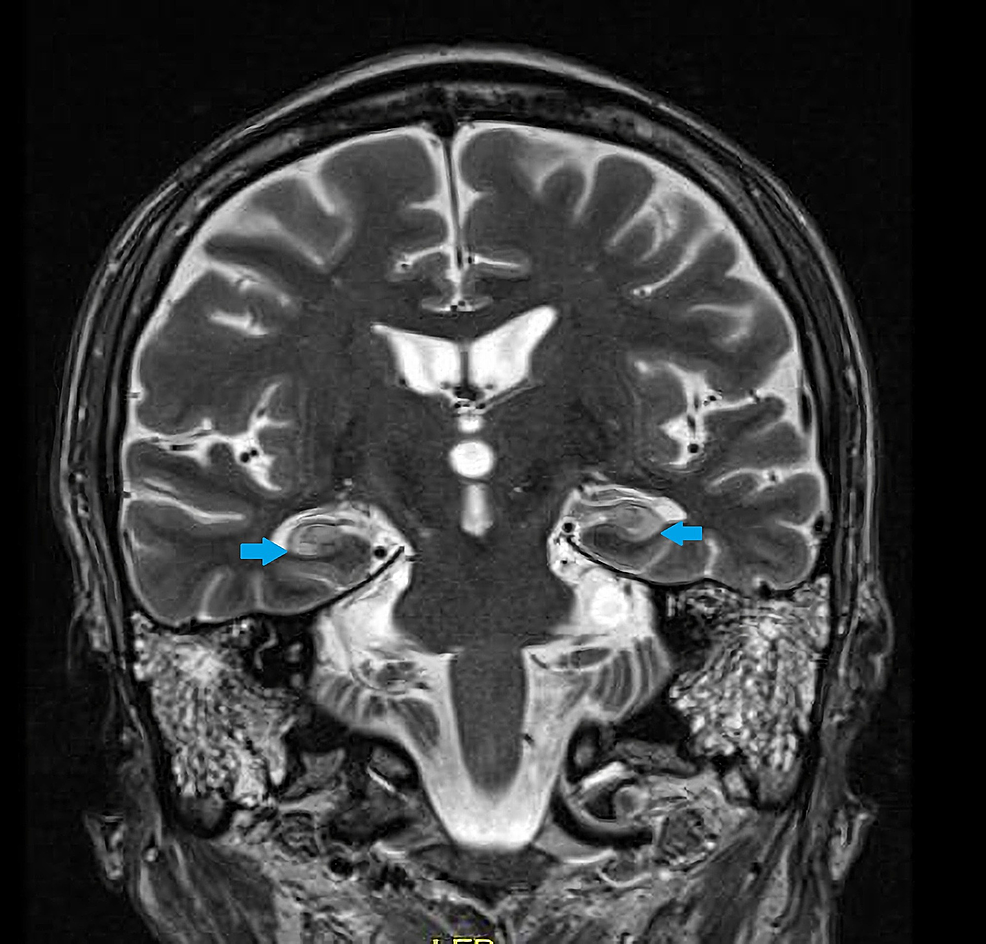 Magnetic-resonance-imaging-(MRI)-brain-coronal-T2-image-demonstrating-increased-T2-signal-in-the-bilateral-hippocampi-(blue-arrows).