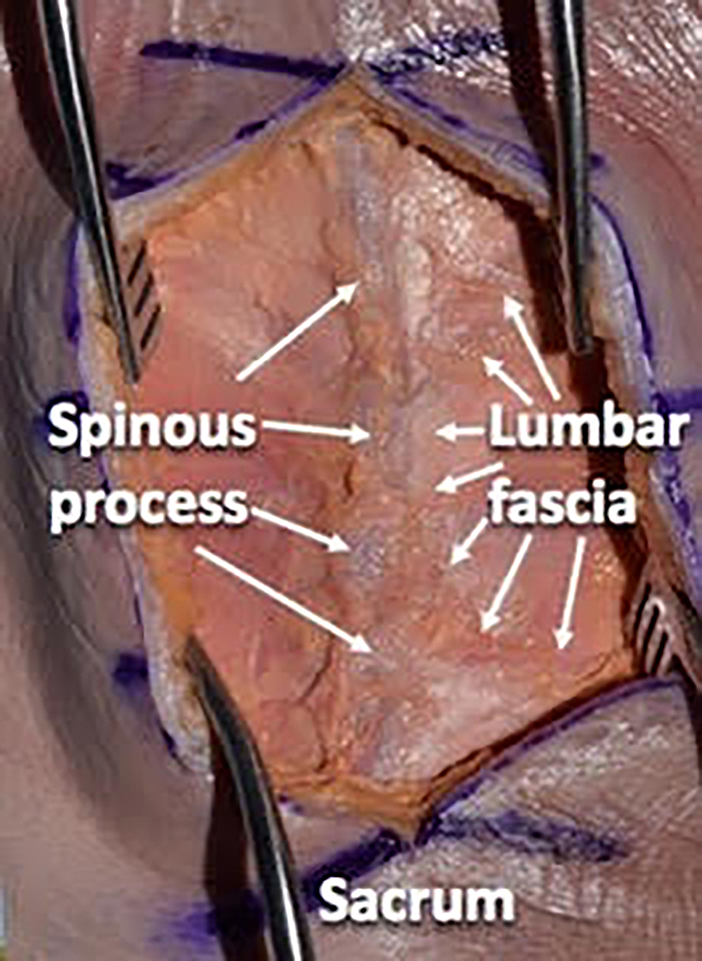 Using-a-Cobb-elevator-to-separate-the-subdermal-fat-layer-from-the-deeper-fascial-layer